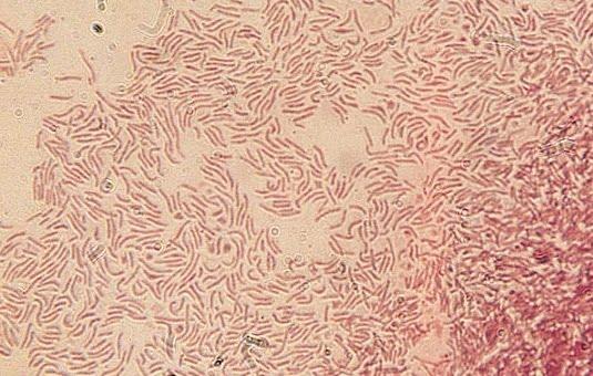 Gram Stain of Helicobacter pylori ( Gram Negative )