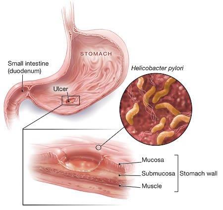 Natural Remedies For Bacterial Gastroenteritis