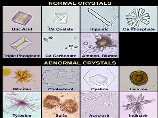 Urine-Crystals-Forms