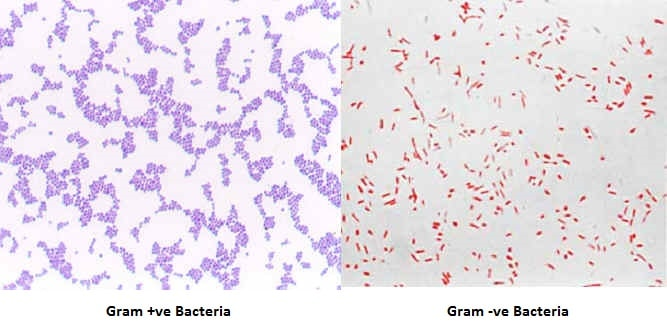 Gram Staining Interpretation