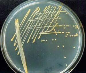 Staphylococcus aureus in nutrient agar
