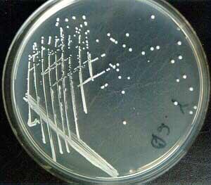 Staphylococcus epidermidis in nutrient agar.