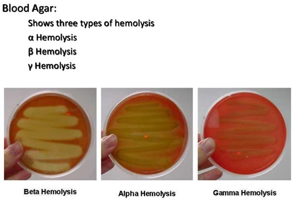 Haemolysis of Streptococci and its types with examples
