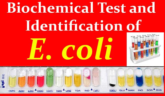 Biochemical Test and Identification of E. coli