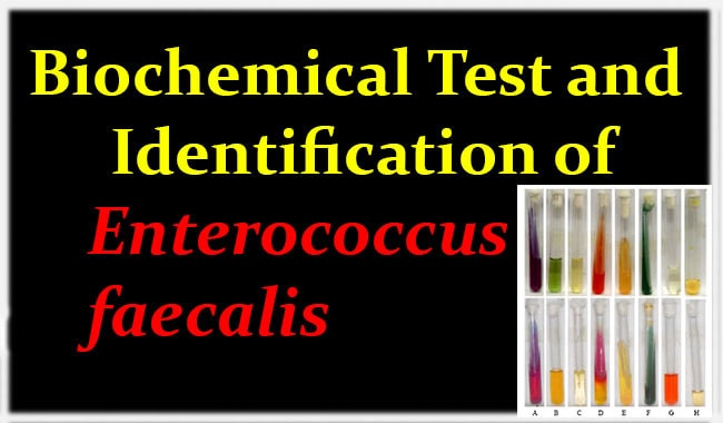 Biochemical Test and Identification of Enterococcus faecalis