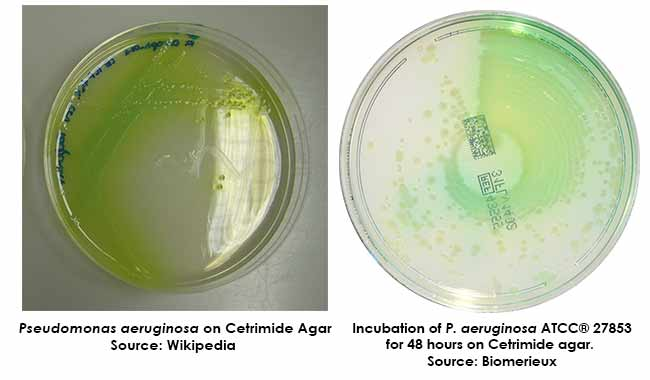 biochemical test for pseudomonas aeruginosa pdf