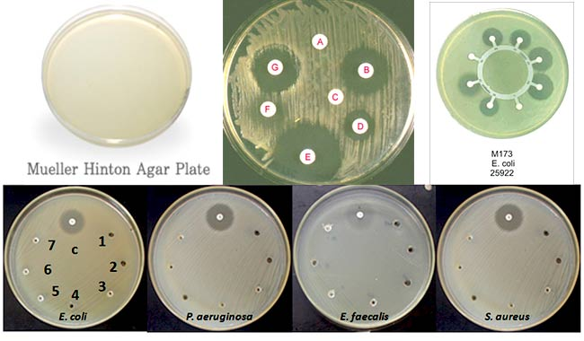 Mueller Hinton Agar (MHA) – Composition, Principle, Uses and Preparation