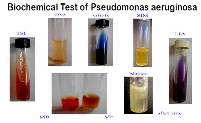 Biochemical Test and Identification of Pseudomonas aeruginosa