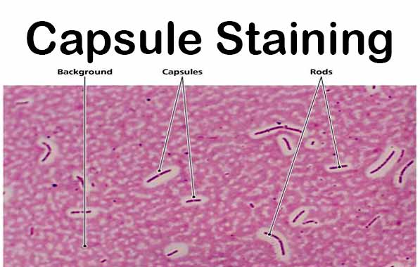 Result of Capsule Staining