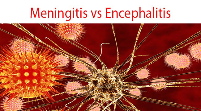 Difference Between Meningitis and Encephalitis