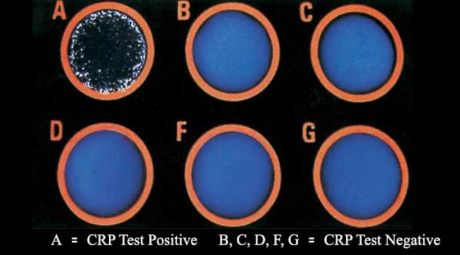 Result Interpretation of CRP Test