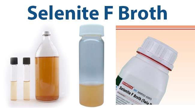 Selenite F Broth- Composition, Principle, Uses, Preparation and Result Interpretation