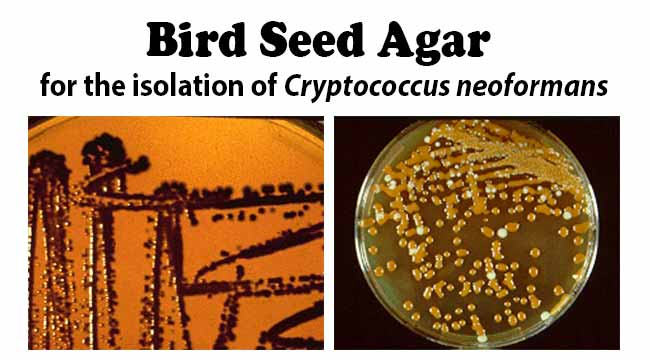 Bird Seed Agar for the isolation of Cryptococcus neoformans