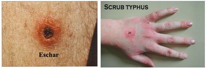 Sign and Symptoms of Scrub Typhus