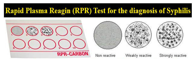 Rapid Plasma Reagin (RPR) Test for the diagnosis of Syphilis