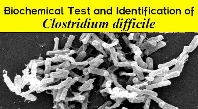 Biochemical Test and Identification of Clostridium difficile