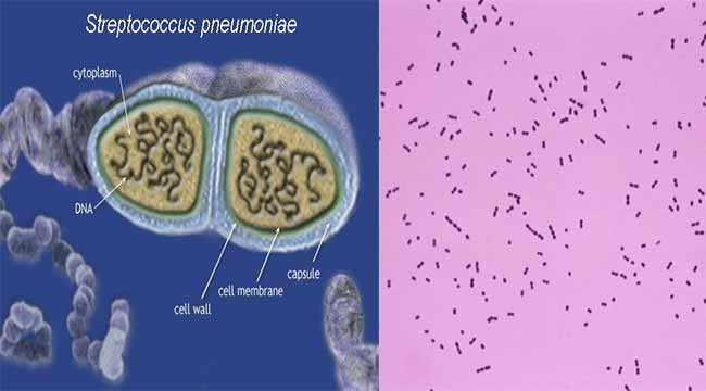 Biochemical Test and Identification of Streptococcus pneumoniae