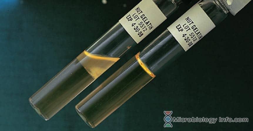 Gelatin Hydrolysis Test Tubes